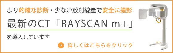 コーンビームCT「RAYSCAN m+」について